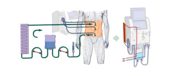 HIFU - ультразвуковая методика